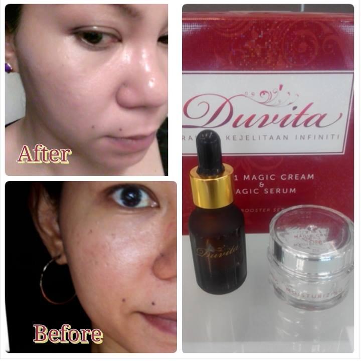 Duvita Product- Women Online Magazine