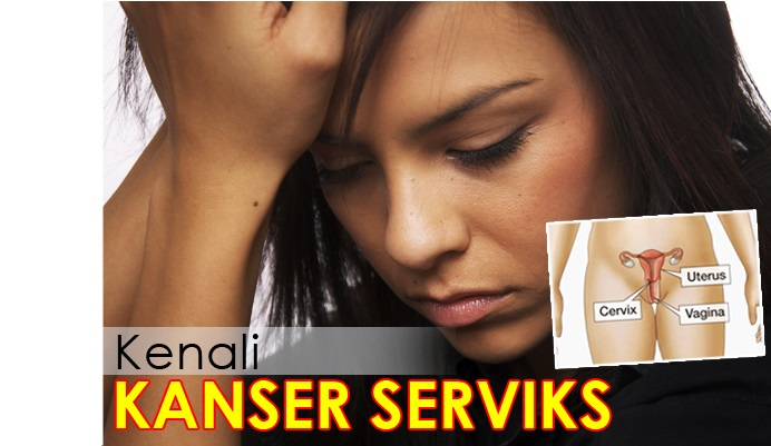 Kenali Kanser Serviks.-Women Online Magazine.