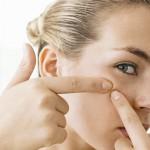 4 Cara Paling Berkesan Untuk Mencegah Jerawat