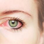 Petua Hilangkan Sakit Mata & Ketumbit