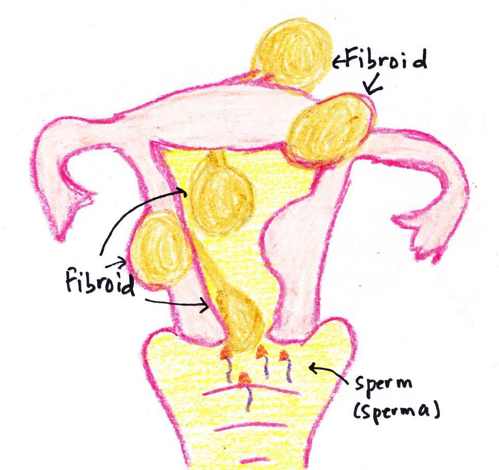 fibroid 3 - woman online magazine