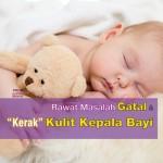 Punca Bayi Gatal Kulit Kepala