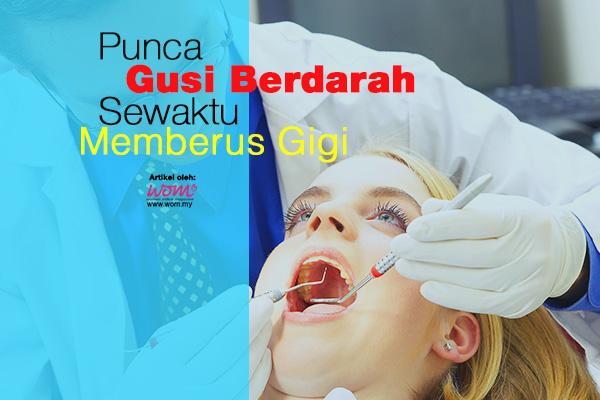 gusi berdarah - women online amagzine