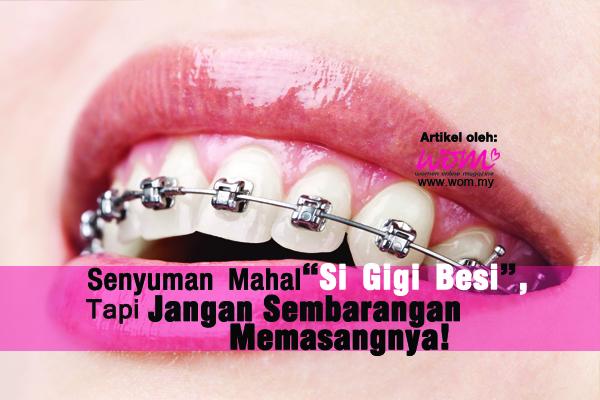 pendakap gigi - women online magazine