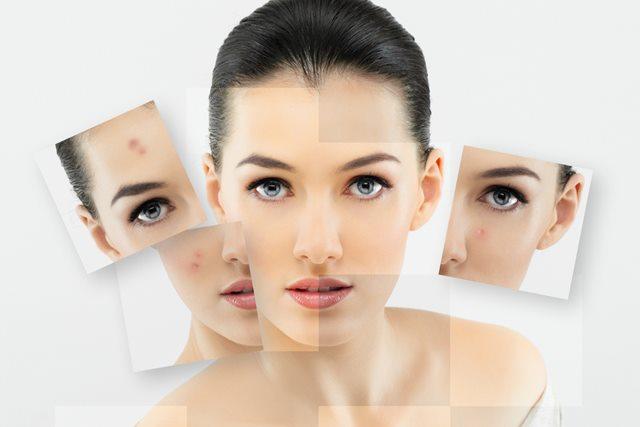 perihal kulit wajah-Women Online Magazine