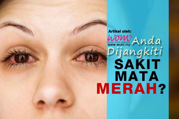 sakit mata merah - women online magazine