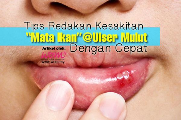 ulser mulut - women online magazine