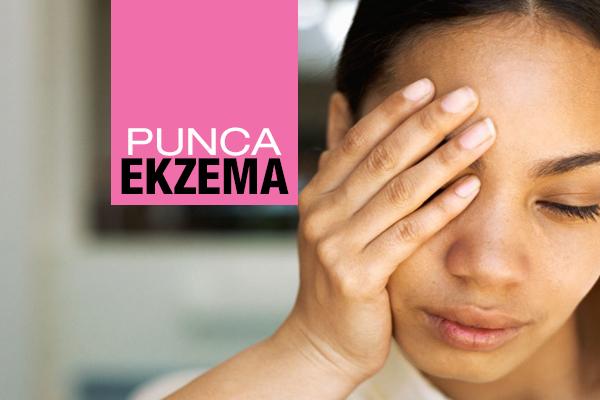 PUNCA EKZEMA - women online magazine