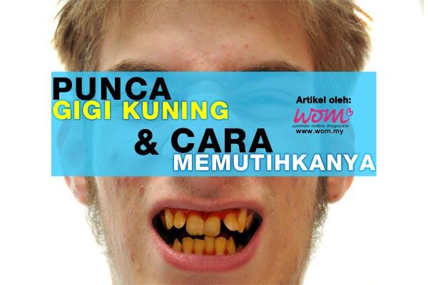 gigi kuning - women online magazine